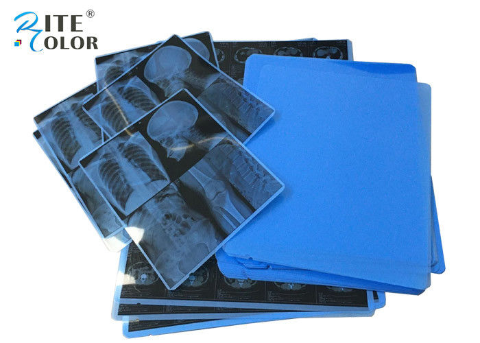 11 X 14 Inch Laser Imaging Film A4 PET Inkjet Medical Dry X Ray Film For CT CR MRT